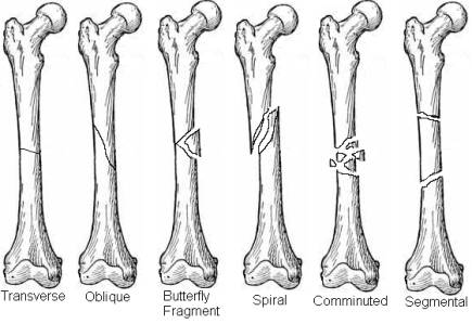Orthopedic Terminology | Team Bone