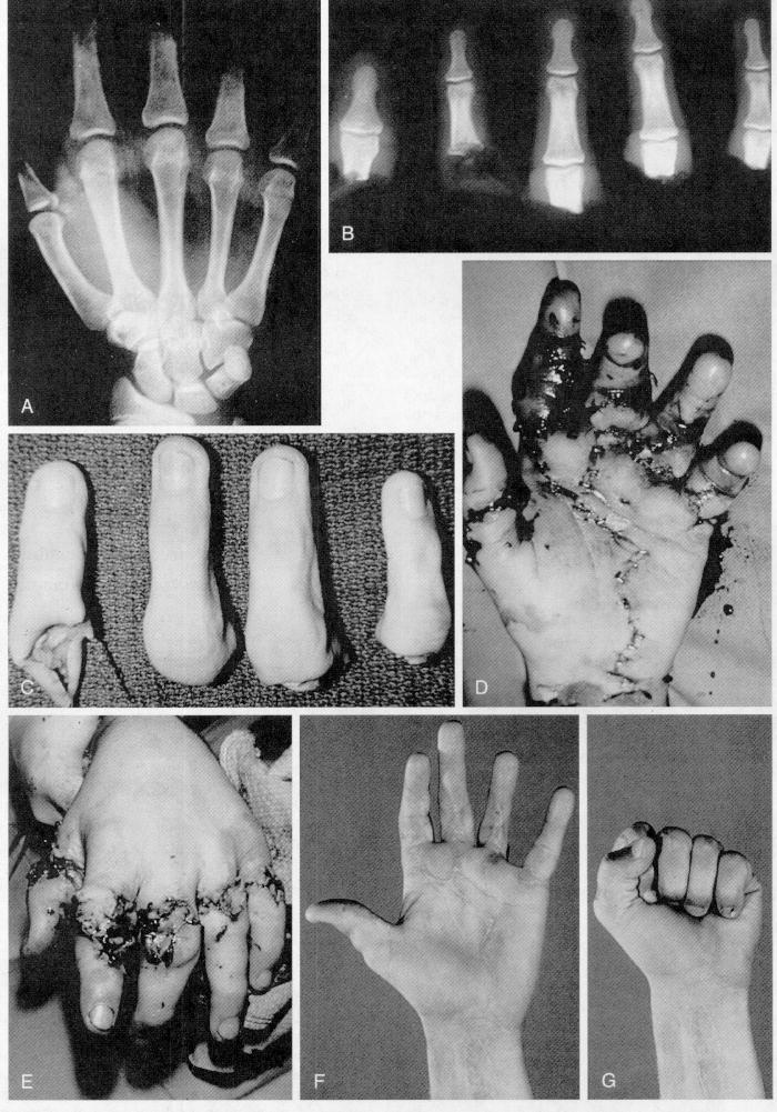 Replantation of the Hand and Digits | Team Bone