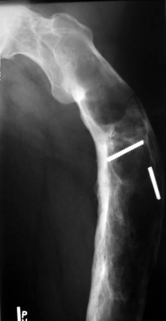 Fibrous Dysplasia Team Bone