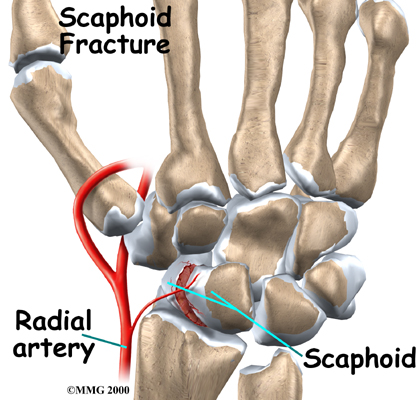 Common Fractures Of Carpal Bones Team Bone